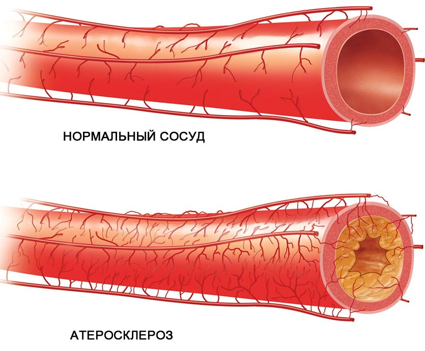 ateroskleroz tipy ateroskleroza simptomy riski - Gambaran umum faktor risiko utama aterosklerosis