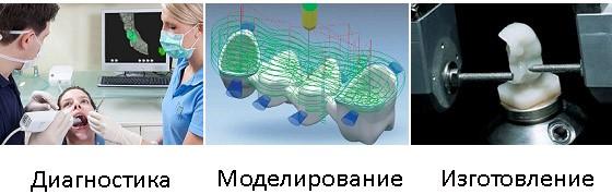 3D моделирование зубных протезов и коронок