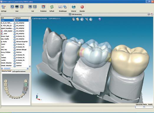 Цифровая стоматология - технология 3D моделирования зубов и десен