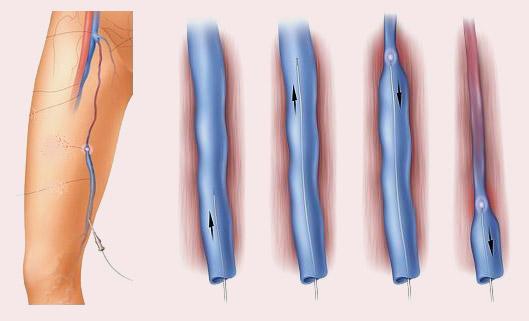 Лазерная коагуляция варикозных вен