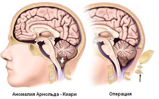 Лечение платибазии - операция