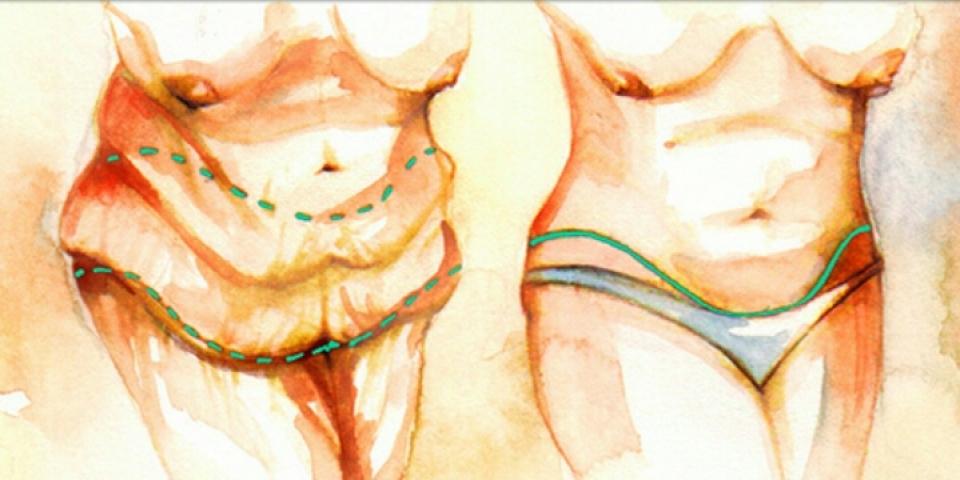 Панникулэктомия - удаление жирового фартука на животе