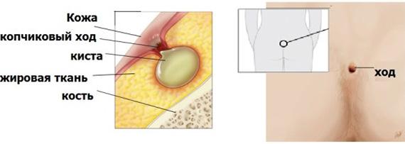 Эпителиальный копчиковый ход - причины и симптомы копчиковой кисты
