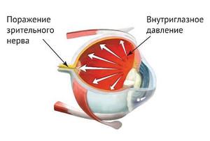 Причины и симптомы высокого внутриглазного давления