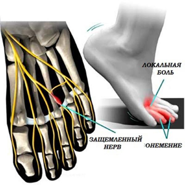 От чего у могут быть ноги красные и болеть thumbnail