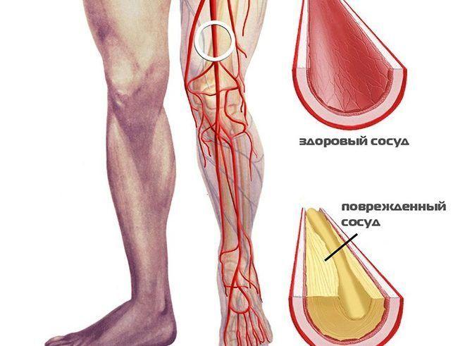 Поражение сосудов ноги, как причина жжения и зуда стопы