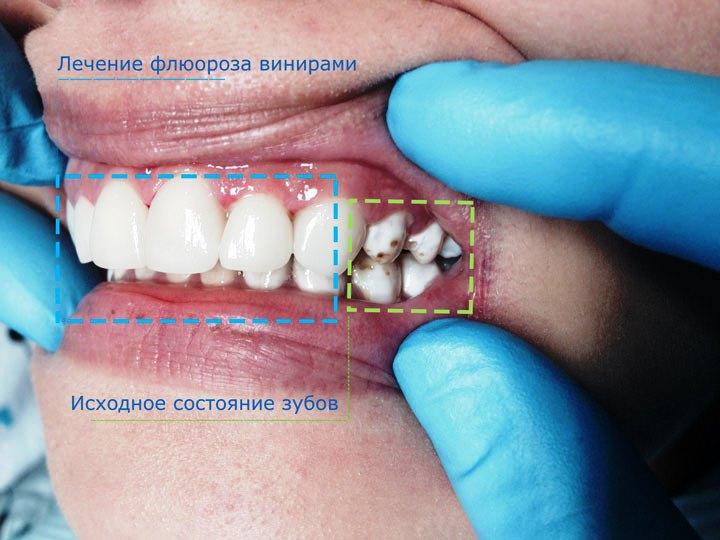 Лечение флюорозных зубов винирами