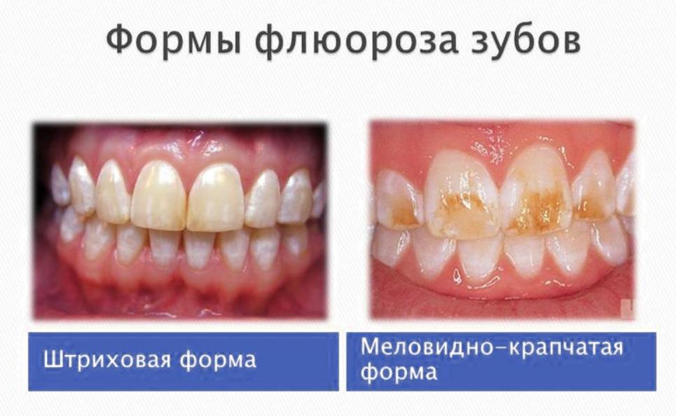 Формы флюороза зубов