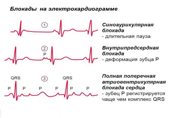 Блокада сердца на электрокардиограмме