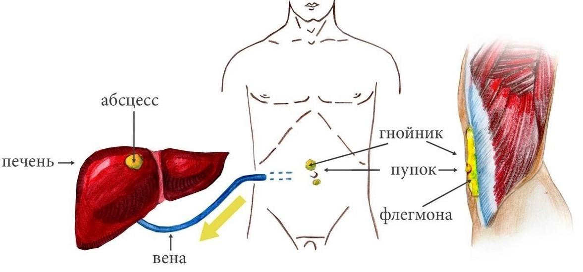 Причины и симптомы абсцесса
