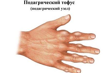 Подагрические тофусы на руках