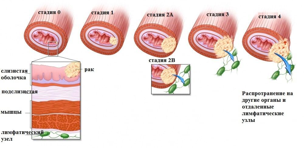 Признаки и симптомы рака во рту, причины развития