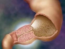 Причины, симптомы пилородуоденального стеноза - лечение пилоростеноза