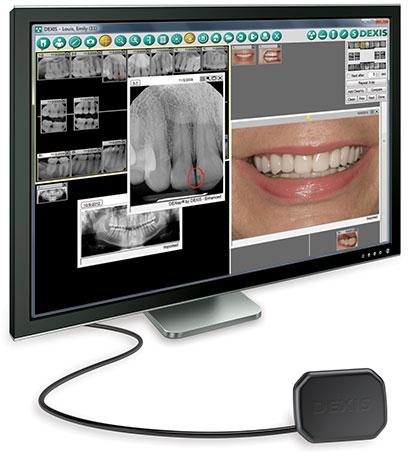 Стоматологический визиограф DEXIS Platinum