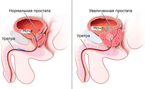 Ишурия у мужчины при опухоли предстательной железы