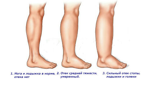 Степени отеков ног