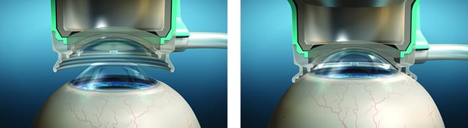 Фемтосекундные лазеры в офтальмологии