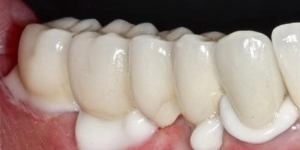 Поликарбоксилатный зубной цемент для зубных протезов и коронок