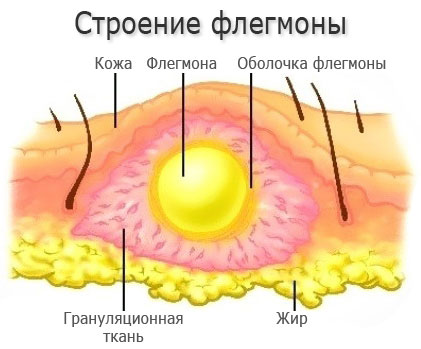 Как возникает флегмона
