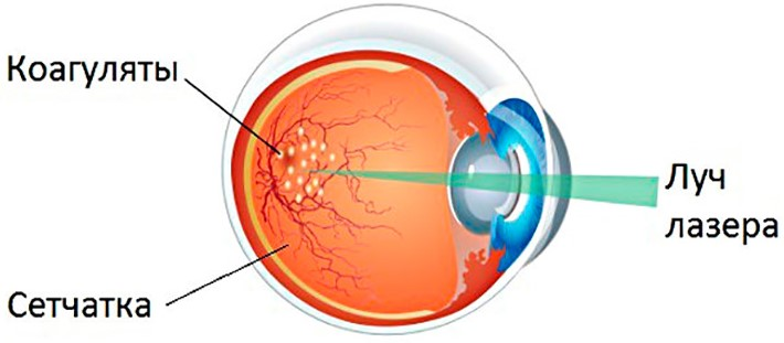 Лазерная коагуляция сетчатки глаза - показания и противопоказания