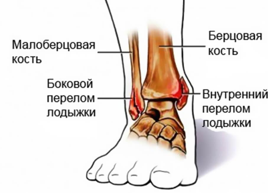 Виды переломов голеностопа - симптомы