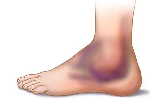 Симптомы перелома голеностопного сустава