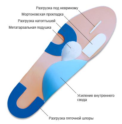 Ортопедические стельки при невроме Мортона
