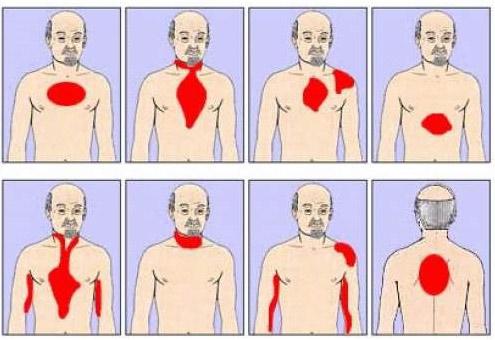 Проекция болевых ощущений при инфаркте миокарда