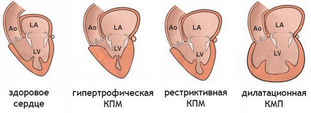 Аритмическая кардиомиопатия
