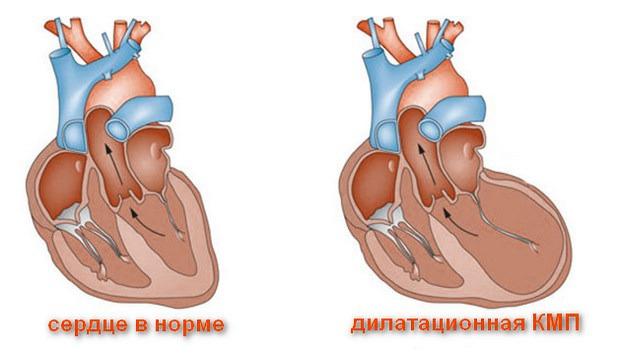 Дилатационная, или застойная кардиомиопатия