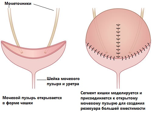 Аугментационная цистопластика