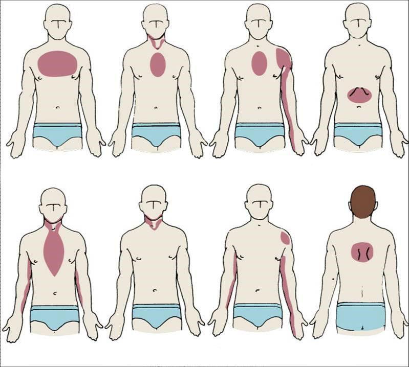 Локализация болей и неприятных ощущений при различных формах и видах инфаркта миокарда
