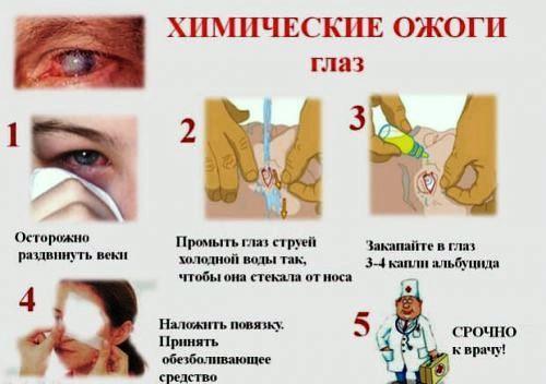 Первая помощь при химических ожогах глаз
