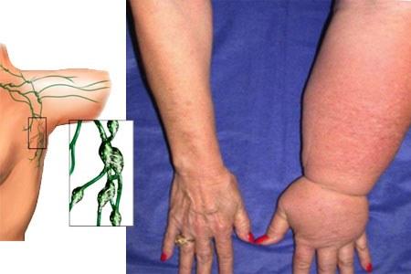 Причины и виды лимфостаза