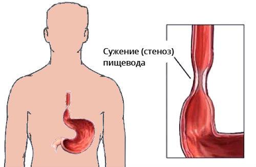 Сужение (стеноз) пищевода - причины, симптомы