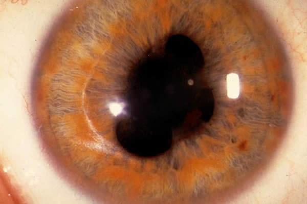 Колобома глаза - причины, симптомы, диагностика и лечение дефекта