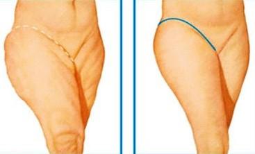 Показания к подтяжке тела - бодилифтингу