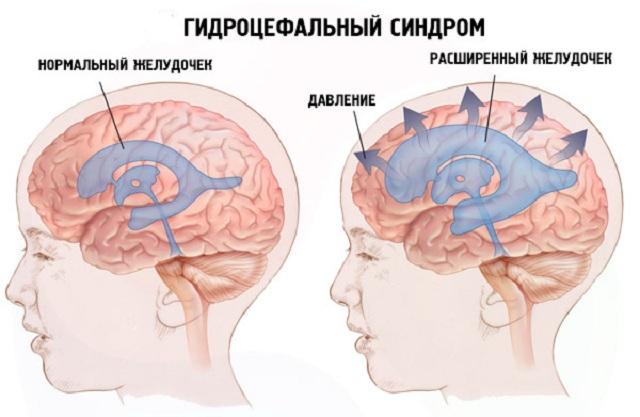 Лечение базилярной импрессии, показания к операции