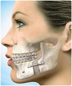 Хирургическая коррекция прикуса