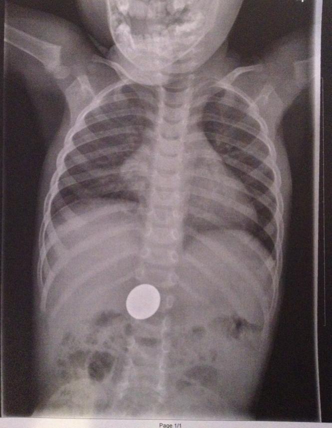 Ребенок проглотил инородное тело - что делать
