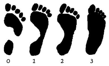 Степени плоскостопия у детей и взрослых