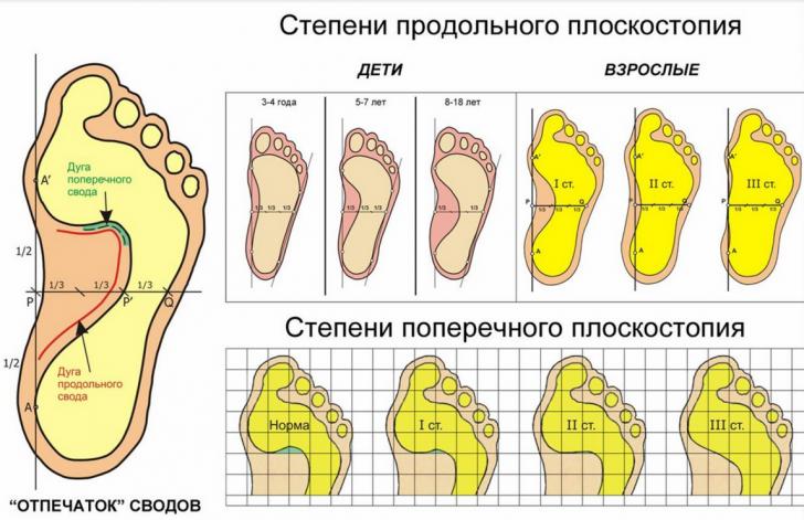 Степени продольного плоскостопия у детей и взрослых