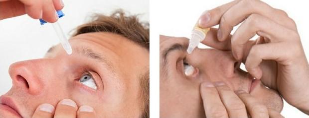 Лечение ожогов глаз легкой степени