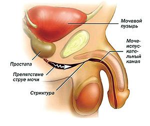 Виды и степени стриктуры уретры у мужчин