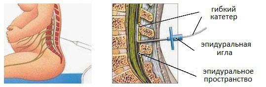 Эпидуральная анестезия - отзывы врачей