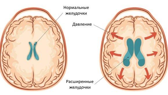 Желудочки ГМ при гидроцефалии у детей