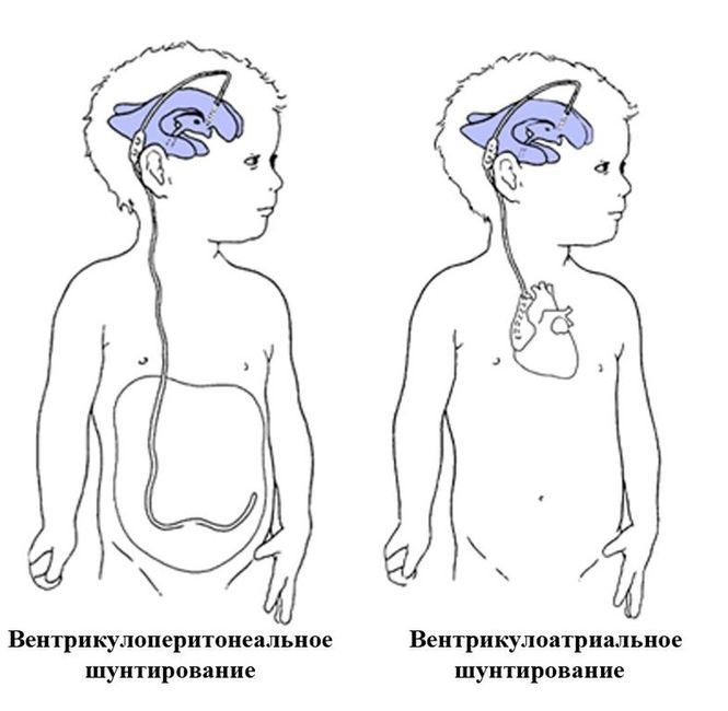 Шунтирование при гидроцефалии