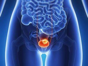 Нейрогенный мочевой пузырь – причины синдрома и последствия