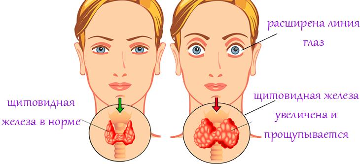 Признаки и симптомы гипертиреоза