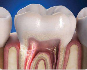 Чувствительные зубы – причины, как снять чувствительность зубов